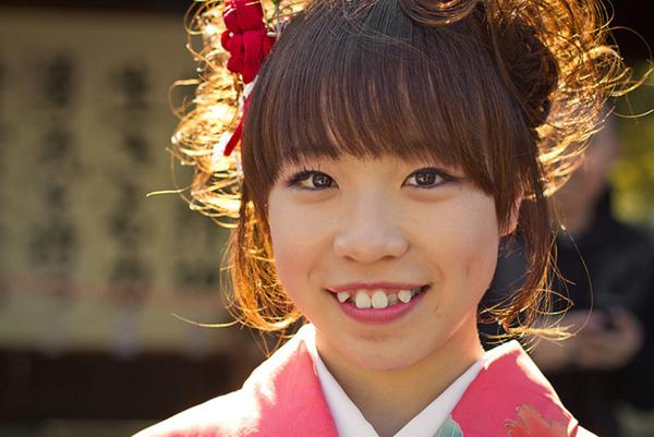 Không chỉ phụ nữ mà ngay cả đàn ông Nhật Bản cũng được đánh giá cao hơn khi có chiếc răng khểnh. Họ coi răng khểnh như một tiêu chuẩn nhan sắc. Chính vì vậy, thay vì đi chỉnh nha để có hàm răng đều đặn hơn, người Nhật còn đi trồng răng khểnh.