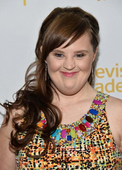 Jamie Brewer (32 tuổi, Mỹ) là nữ diễn viên kiêm người mẫu mắc phải hội chứng down. Gạt bỏ mọi mặc cảm, cô vẫn hòa nhập cuộc sống và xây dựng được cho mình sự nghiệp đáng ngưỡng mộ