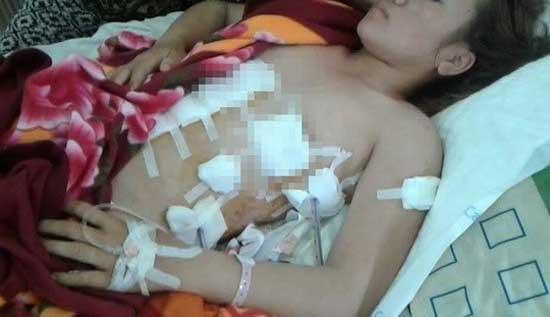 Chị Lê Thi Na bị tình địch đâm trọng thương. Ảnh: NVCC.