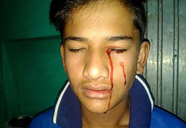 Akhilesh có thể bị chảy máu 10 lần một ngày. Ảnh: SWNS