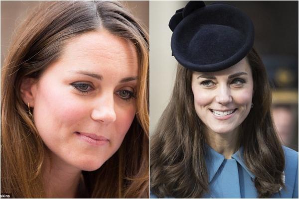 Ảnh trái: Kate sau khi sinh Hoàng tử George. Ảnh phải: Ảnh chụp vào tháng 2/2016.