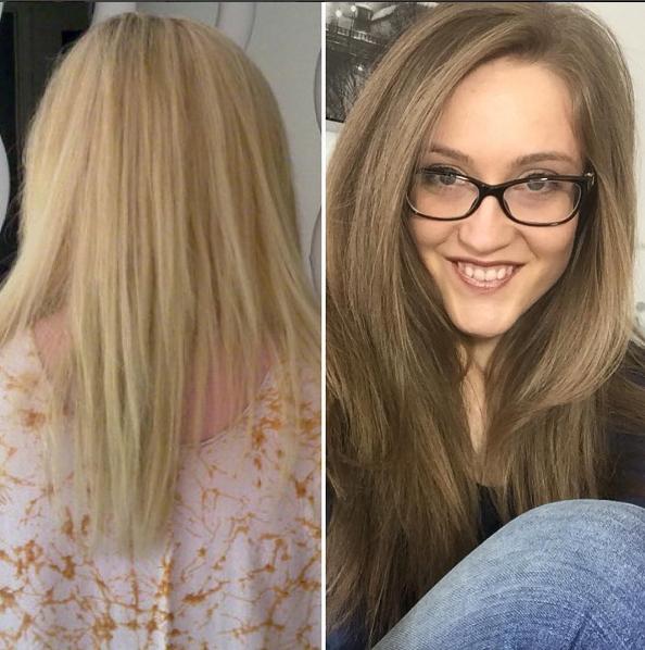 Kayleigh từng bị hư tổn nặng nề nên rụng nhiều, tóc mỏng đi trông thấy.