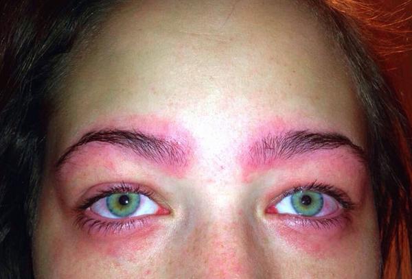 30 phút sau khi sử dụng, cô cảm thấy ngứa và nóng rát vùng mắt.