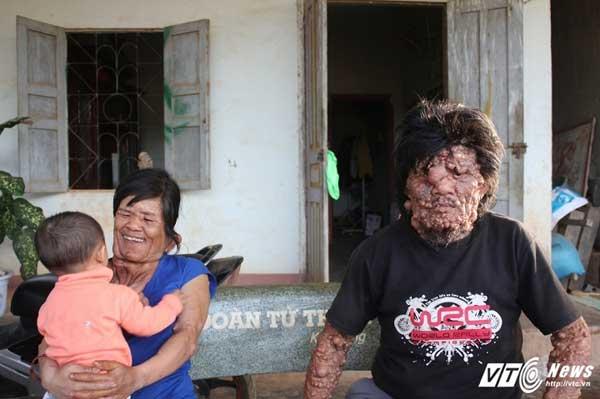 Ông Tê cùng người con gái có khuôn mặt quái lạ.