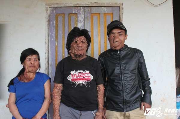 3 người trong gia đình ông Tê với nhiều dị tật trên cơ thể.