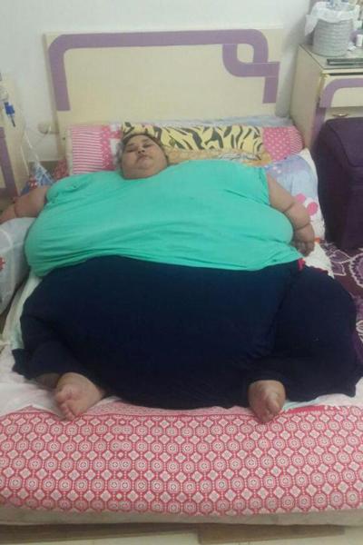 Eman Ahmed với thân hình khổng lồ trước khi được điều trị giảm béo. Ảnh: