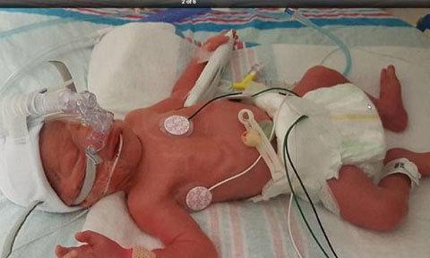 Y tá đánh rơi trẻ sơ sinh xuống đất vì ngủ gật