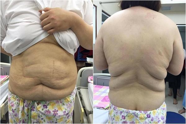Thủy Tiên chia sẻ hình ảnh vòng eo trước khi phẫu thuật.