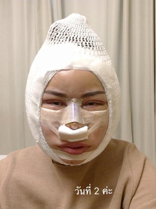 Bombay ghi lại toàn bộ quá trình phục hồi sau phẫu thuật. Đây là hình ảnh của cô 2 ngày sau ca đại phẫu.