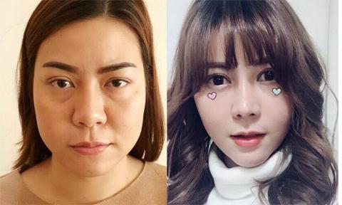 Cô gái Thái Lan xinh như hot girl sau khi 'đập mặt đi xây lại'