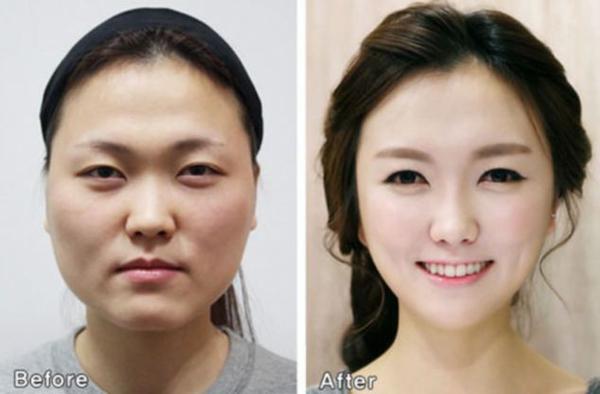 Một cuộc khảo sát mới được thực hiện tại Hàn Quốc cho kết quả, cứ 5 phụ nữ Hàn thì có 1 người đã từng phẫu thuật thẩm mỹ.