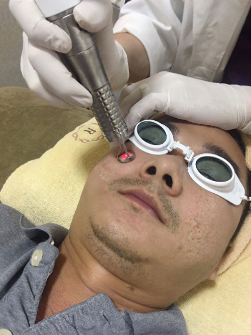 tri-seo-mun-hieu-qua-voi-cong-nghe-laser-4d-2