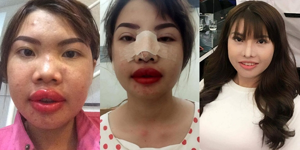Khuôn mặt Phượng thay đổi sau những lần phẫu thuật thẩm mỹ.