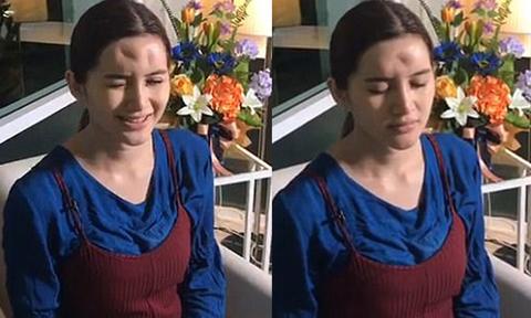Cô gái Thái Lan biến dạng trán vì tiêm chất làm đầy