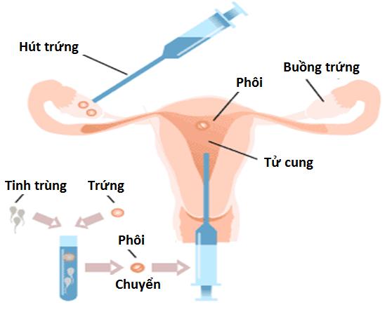 hanh-trinh-thu-tinh-ong-nghiem-cua-vo-chong-dong-tinh-nu-hai-phong-1