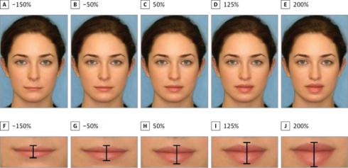 Nghiên cứu về độ dày giữa môi trên và môi dưới theo các tỷ lệ khác nhau.