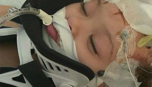 Bé gái 2 tuổi tổn thương não do bị bảo mẫu 16 tuổi đập đầu vào tường
