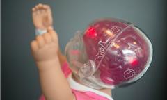 Bé có thể bị rách mô não khi bố mẹ bế con rung lắc mạnh