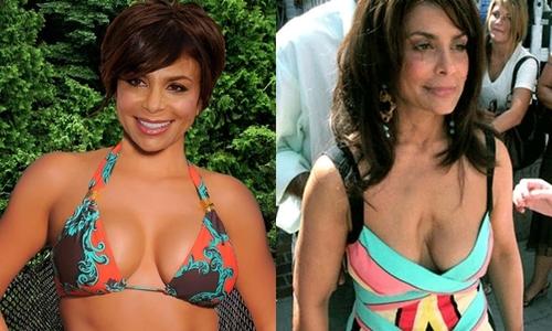 8 người đẹp Hollywood hỏng ngực vì biến chứng dao kéo