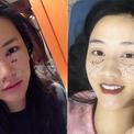 Maya bất ngờ lộ ảnh mặt sưng phù khi đi thẩm mỹ ở Hàn Quốc