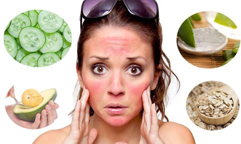 Hạ nhiệt cho làn da sau khi đi nắng bằng 6 loại mặt nạ tự nhiên