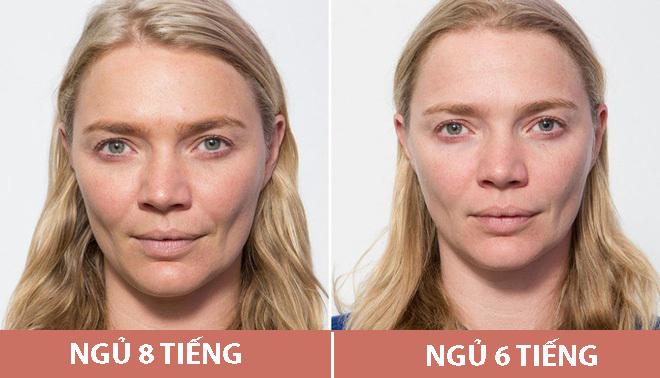 Sự khác biệt của làn da khi ngủ đủ 8 tiếng và khi chỉ ngủ 6 tiếng.