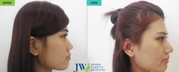 co-hoi-lam-dep-mien-phi-tai-jw-skincare-2