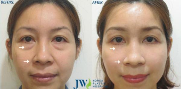 co-hoi-lam-dep-mien-phi-tai-jw-skincare