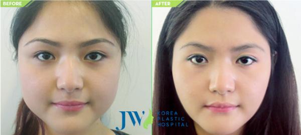 co-hoi-lam-dep-mien-phi-tai-jw-skincare-1