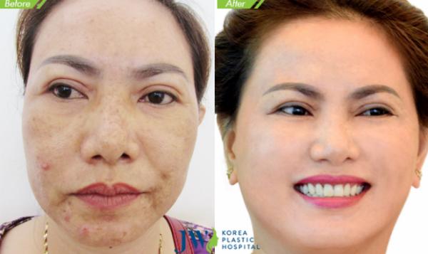 co-hoi-lam-dep-mien-phi-tai-jw-skincare-3