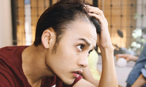 Chàng trai vượt qua mặc cảm hói đầu nhờ cấy tóc