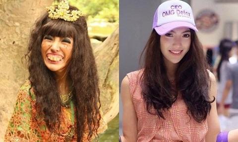 Cô gái Thái Lan có 'hàm răng phù thủy' lột xác sau khi dao kéo