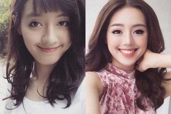 Nhan sắc Khánh Linh thay đổi trước và sau khi sửa mũi, niềng răng.