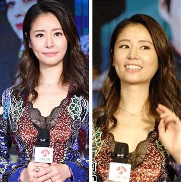 Sau khi chỉnh sửa, khuôn mặt Lâm Tâm Như thon gọn hơn hẳn. Làn da cũng được tắm trắng miễn phí.
