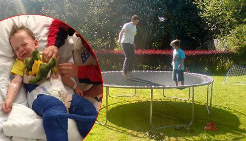 Bé trai 3 tuổi gãy cả hai xương đùi vì chơi bạt nhún