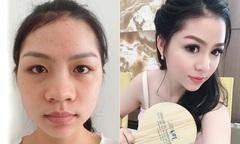 Cô gái 9x 'lột xác' nhờ nâng mũi