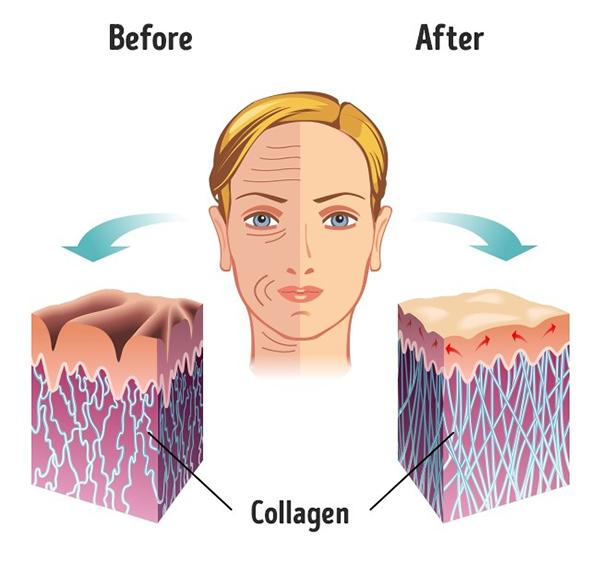 4. Ngăn ngừa nếp nhăn Hạnh nhân chứa hàm lượng lớn mangan, hợp chất sản sinh ra collagen. Vitamin E trong hạnh nhân cũng giúp ngăn ngừa nếp nhăn, chống lão hoá hiệu quả.