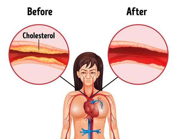 2. Giảm cholesterol Hạnh nhân là một trong những loại thực phẩm đầu bảng giúp giảm hàm lượng cholesterol trong cơ thể. Khi thấy xuất hiện những đốm trắng ở dưới mí mắt hay tóc bạc sớm, nên tăng cường ăn hạnh nhân để hạ thấp chỉ số cholesterol.