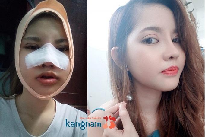 nhieu-guong-mat-duoc-hoan-thien-trong-hanh-trinh-lot-xac-2017-4