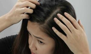 Giải pháp đặc trị cho tóc gàu