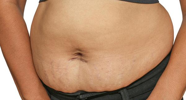 Mỡ thừa, chảy xệ, rạn da và xuống cấp vòng bụng sau sinh là nỗi lo lắng, mặc cảm của nhiều chị em sau sinh.