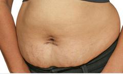 Giúp mẹ sau sinh giảm mỡ bụng không tốn phí