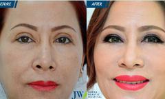 Khắc phục biến chứng do thẩm mỹ mắt sai cách