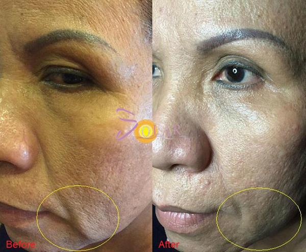 xoa-nhan-nang-co-mat-bang-cong-nghe-ultherapy-cay-collagen-2