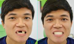 Tìm lại nụ cười cho chàng trai Thái Bình 13 năm mất răng