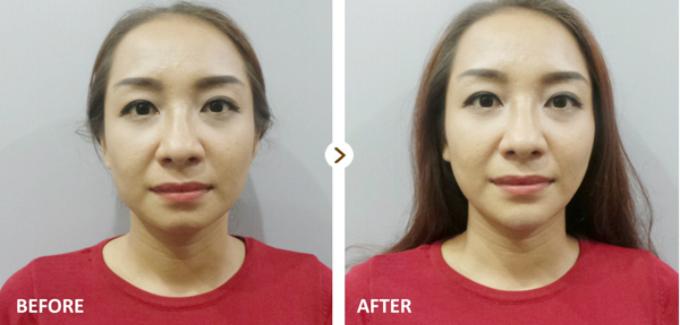 Khi sử dụng các công nghệ thẩm mỹ không phẫu thuật như: mặt thon gọn, tạo mặt V-line, nâng mũi S-line, tan mỡ nọng cằm, hút mỡ không phẫu thuật Cavi-lipo& bạn được giảm 30%.