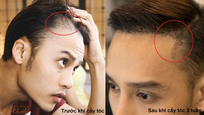 Cấy tóc tự thân - Giải pháp không phẫu thuật giúp phục hồi tóc tối đa chỉ sau 1 lần thực hiện
