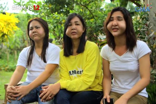 Khuôn mặt biến dạng của 3 cô bạn thân người Phillippines.