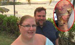 Cô dâu bị nhện độc cắn suýt chết khi đi nghỉ trăng mật