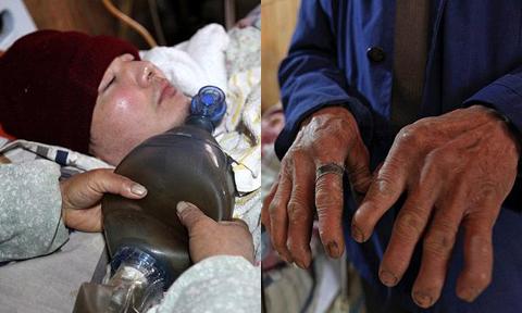Cả gia đình tay biến dạng vì bóp 'máy thở' tự chế duy trì sự sống cho con